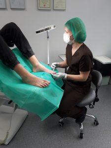 podolog podczas zabiegu usuwania wrastającej paznokcia